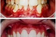 ortopedia_facial